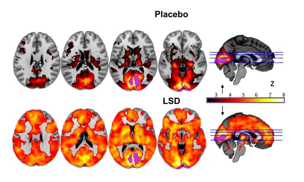 brain scan LSD third eye awakening